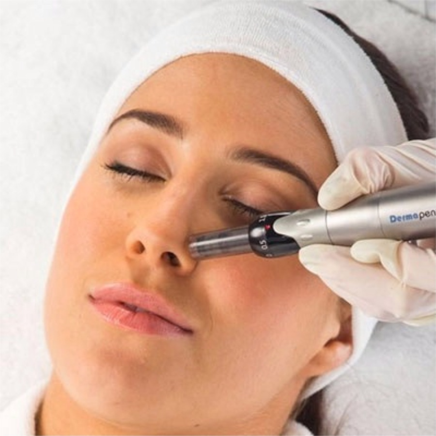 Dermapen-Needling